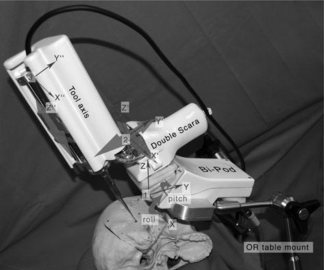CI surgery robot